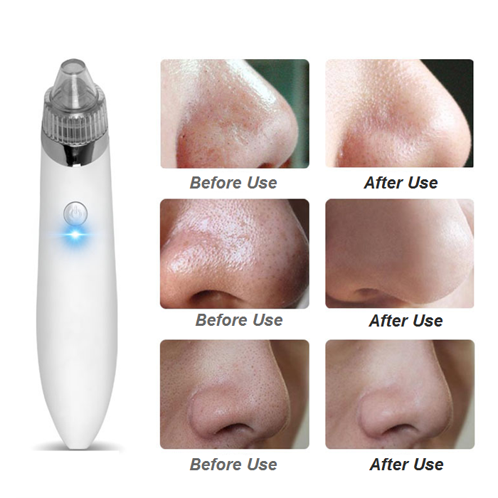 Blackhead Suction Removal Facial Cleanser